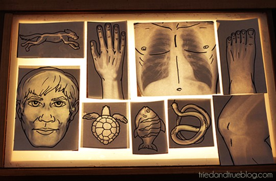 Printable X-Rays with matching line drawings on a light table.